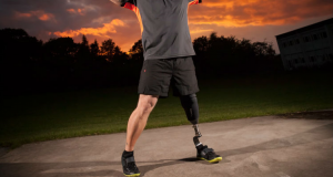 how-are-prosthetics-made