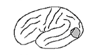 Aphasia Types   Aphasia Connections