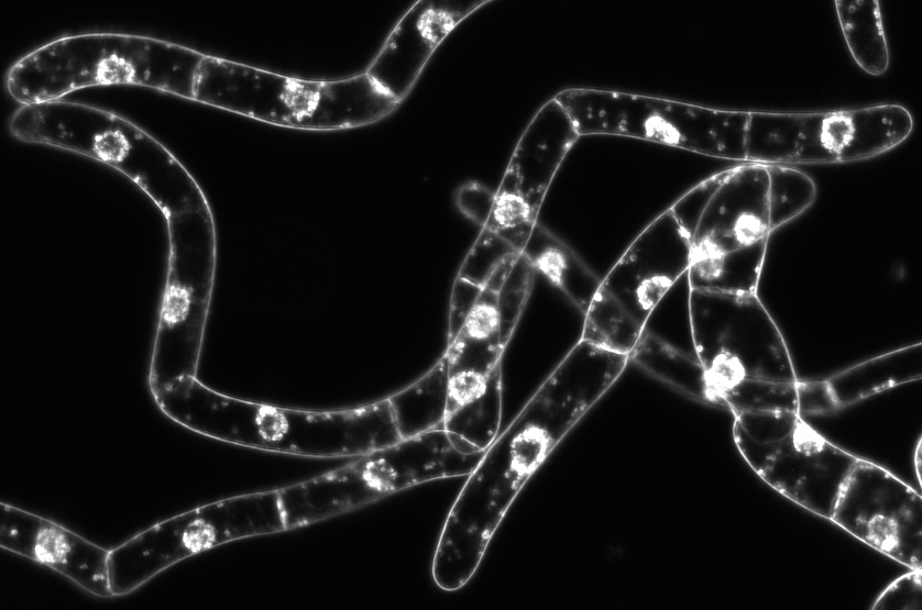 Fig. 1  Tobacco BY-2 cells viewed in dark-field. Cell diameter is about 30 µm.