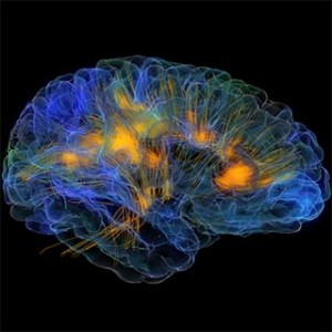 GlassBrain. Credit: Neuroscape lab, UCSF