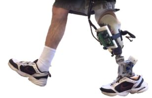 Lower Limb Prostheses with Dynamic Joint Alignment - Dynamic alignment is a new concept that actively realigns the residual limb with the ground reaction force during the stance phase of gait to reduce socket loading.