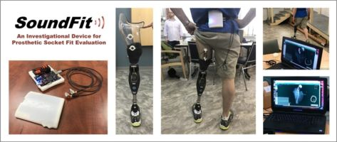 Monitoring Bone Motion within the Socket- With FTL Labs a new enabling technology for socket fitment using ultrasonic bone tracking transceivers. It leverages high-precision line-of-sight ultrasound transceivers and intuitive visualization software.
