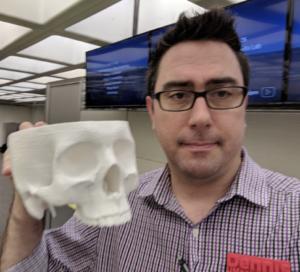 Dennis Spencer holding a 3D printed skull